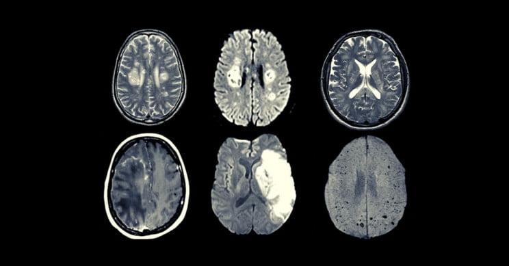 سلول های مغز